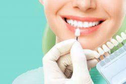 Co warto wiedzieć o wybielaniu zębów?